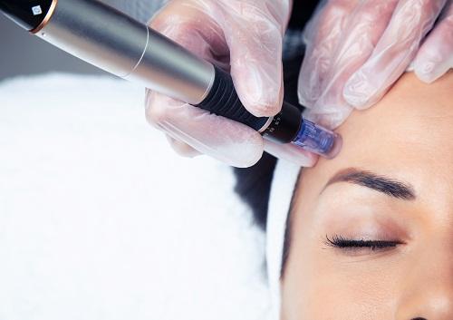 Lessentiel-a-savoir-sur-la-dermopigmentation-